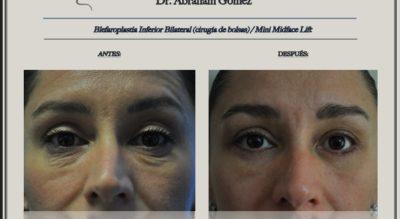 Eyelid ptosis surgery (droopy eyelids) Costa Rica